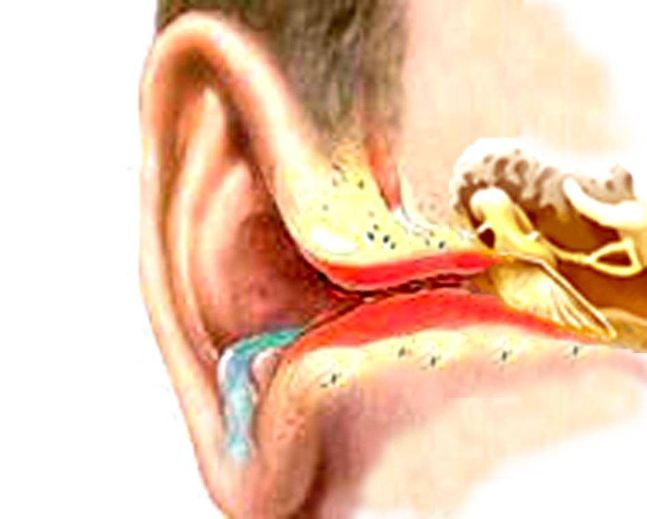 серной пробки в ухе